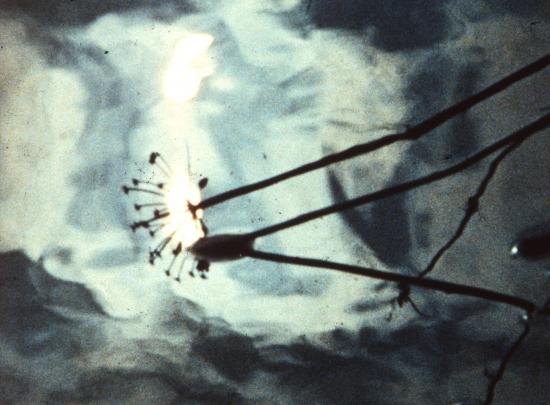 Vodní wracketi (1975)