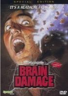 Mozková příhoda