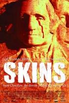 Rudé kůže (Skins)