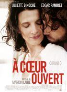 TV program: Otevřené srdce (À cœur ouvert)